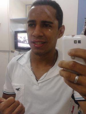 Nilsinho morreu no local enquanto  sua namarada sofreu escoriações e fratura  na pernaexpostas