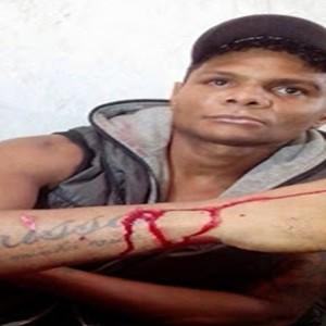 Moreno recebeu facada no braço Foto: Site Noticias Urgente