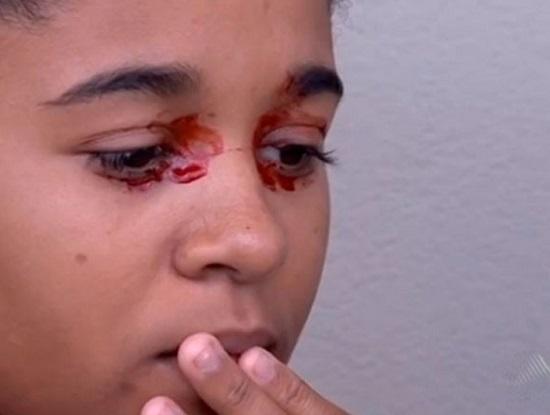 Queila apresenta sangramento ocular há quase um mês (Reprodução TV Santa Cruz).