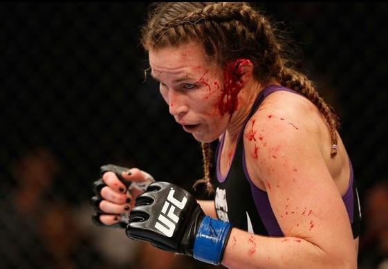 Leslie ficou com a orelha bastante ferida após ser atingida com um soco de Jessica