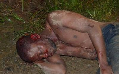 O assaltante ferido de prenome  Eraldo foi socorriido sob escolta policial