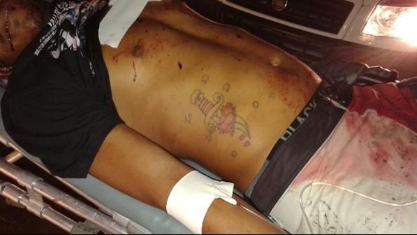 O corpo do jovem se encontra na pedra do hospital aguardando reconhecimento