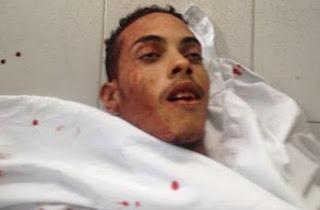 Anderson, 19 anos, foi morto a tiros na tarde desse domingo (31),