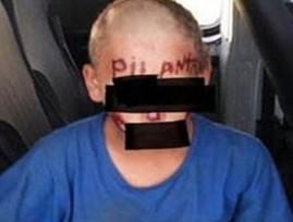 O garoto foi torturado no cativeiro.