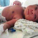 LAURO DE FREITAS: BEBÊ ENCONTRADO EM SACO DE LIXO TEM ALTA MÉDICA