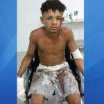 URUÇUCA: LADRÃO TEM MÃOS CORTADAS APÓS FURTAR BOTIJÃO DE GÁS