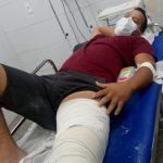 IlHÉUS: MOTORISTA DE APLICATIVO É AGREDIDO VIOLENTAMENTE E PASSA POR CIRURGIA